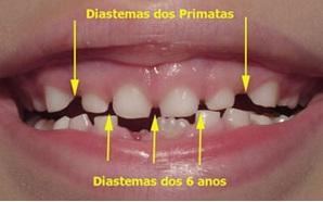 diastema-infantil